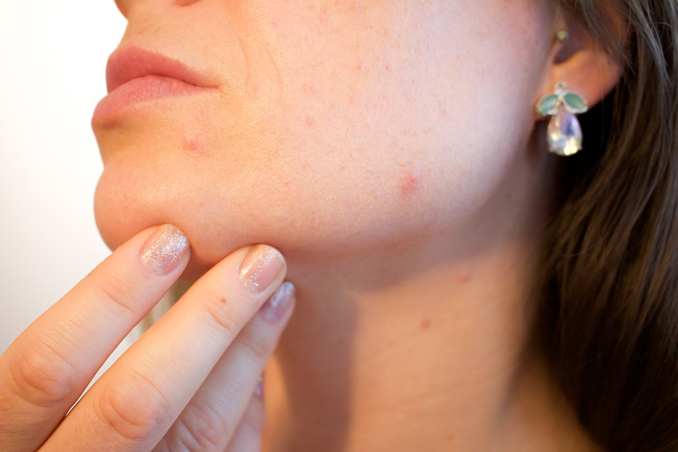 Sensitive Skin: 10 Signs You Have This ACNE Causing skin type and How to Treat it